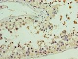 Immunohistochemistry of paraffin-embedded human testis using antibody at 1:100 dilution.  This image was taken for the unconjugated form of this product. Other forms have not been tested.