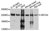 ABCA4 Antibody - Western blot analysis of extracts of various cell lines, using ABCA4 antibody at 1:1000 dilution. The secondary antibody used was an HRP Goat Anti-Rabbit IgG (H+L) at 1:10000 dilution. Lysates were loaded 25ug per lane and 3% nonfat dry milk in TBST was used for blocking. An ECL Kit was used for detection and the exposure time was 10s.