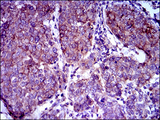 ABCB5 Antibody - IHC of paraffin-embedded breast cancer tissues using ABCB5 mouse monoclonal antibody with DAB staining.