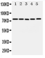 ABCG1 Antibody - Anti-ABCG1 antibody, Western blotting All lanes: Anti ABCG1 at 0.5ug/ml Lane 1: U87 Whole Cell Lysate at 40ug Lane 2: SMMC Whole Cell Lysate at 40ug Lane 3: HELA Whole Cell Lysate at 40ug Lane 4: COLO320 Whole Cell Lysate at 40ug Lane 5: MCF-7 Whole Cell Lysate at 40ug Predicted bind size: 75KD Observed bind size: 75KD