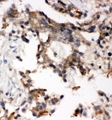 IHC analysis of ABI using anti-ABI antibody. ABI was detected in paraffin-embedded section of human lung cancer tissues. Heat mediated antigen retrieval was performed in citrate buffer (pH6, epitope retrieval solution) for 20 mins. The tissue section was blocked with 10% goat serum. The tissue section was then incubated with 1µg/ml rabbit anti-ABI Antibody overnight at 4°C. Biotinylated goat anti-rabbit IgG was used as secondary antibody and incubated for 30 minutes at 37°C. The tissue section was developed using Strepavidin-Biotin-Complex (SABC) with DAB as the chromogen.