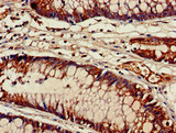 ACAD9 Antibody - Immunohistochemistry of paraffin-embedded human colon cancer at dilution of 1:100