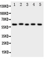 ACCN3 / ASIC3 Antibody - Western blot analysis of ASIC3 using anti-ASIC3 antibody. Electrophoresis was performed on a 5-20% SDS-PAGE gel at 70V (Stacking gel) / 90V (Resolving gel) for 2-3 hours. The sample well of each lane was loaded with 50ug of sample under reducing conditions. Lane 1: Rat Brain Tissue Lysate, Lane 2: Rat Testis Tissue Lysate, Lane 3: U87 Cell Lysate, Lane 4: NEURO Cell Lysate, Lane 5: SMMC Cell Lysate. After Electrophoresis, proteins were transferred to a Nitrocellulose membrane at 150mA for 50-90 minutes. Blocked the membrane with 5% Non-fat Milk/ TBS for 1.5 hour at RT. The membrane was incubated with rabbit anti-ASIC3 antigen affinity purified polyclonal antibody at 0.5 µg/mL overnight at 4°C, then washed with TBS-0.1% Tween 3 times with 5 minutes each and probed with a goat anti-rabbit IgG-HRP secondary antibody at a dilution of 1:10000 for 1.5 hour at RT. The signal is developed using an Enhanced Chemiluminescent detection (ECL) kit with Tanon 5200 system. A specific band was detected for ASIC3 at approximately 69KD. The expected band size for ASIC3 is at 58KD.