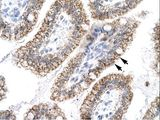 ACLP / AEBP1 Antibody - AEBP1 antibody ARP31592_P050-NP_001120-AEBP1 (AE binding protein 1) Antibody was used in IHC to stain formalin-fixed, paraffin-embedded human intestine.  This image was taken for the unconjugated form of this product. Other forms have not been tested.
