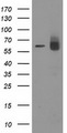 ACOT12 Antibody - HEK293T cells were transfected with the pCMV6-ENTRY control (Left lane) or pCMV6-ENTRY ACOT12 (Right lane) cDNA for 48 hrs and lysed. Equivalent amounts of cell lysates (5 ug per lane) were separated by SDS-PAGE and immunoblotted with anti-ACOT12.