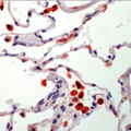 Formalin-fixed, paraffin-embedded human lung stained with AEC chromogen. Note staining of activated alveolar macrophages in lung.