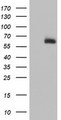 HEK293T cells were transfected with the pCMV6-ENTRY control (Left lane) or pCMV6-ENTRY ACSM5 (Right lane) cDNA for 48 hrs and lysed. Equivalent amounts of cell lysates (5 ug per lane) were separated by SDS-PAGE and immunoblotted with anti-ACSM5.