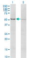 ACTRIIB / ACVR2B Antibody - Western Blot analysis of ACVR2B expression in transfected 293T cell line by ACVR2B monoclonal antibody (M03), clone 1C11.Lane 1: ACVR2B transfected lysate (Predicted MW: 34.2 KDa).Lane 2: Non-transfected lysate.