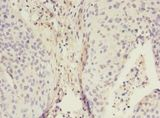 Immunohistochemistry of paraffin-embedded human cervical cancer using antibody at 1:100 dilution.  This image was taken for the unconjugated form of this product. Other forms have not been tested.
