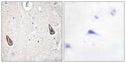 ADCY5+6 Antibody - Immunohistochemistry analysis of paraffin-embedded human brain tissue, using ADCY5/6 Antibody. The picture on the right is blocked with the synthesized peptide.