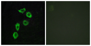 ADGRA1 / GPR123 Antibody - Immunofluorescence analysis of HUVEC cells, using GPR123 Antibody. The picture on the right is blocked with the synthesized peptide.