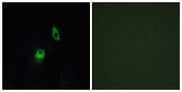Immunofluorescence analysis of HeLa cells, using GPR124 Antibody. The picture on the right is blocked with the synthesized peptide.