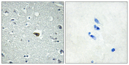 Immunohistochemistry analysis of paraffin-embedded human brain tissue, using BAI1 Antibody. The picture on the right is blocked with the synthesized peptide.
