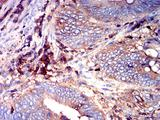 ADGRE5 / CD97 Antibody - Immunohistochemical analysis of paraffin-embedded rectum cancer tissues using CD97 mouse mAb with DAB staining.