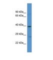 ADRA1A Antibody - Western blot of Human U937. ADRA1A antibody dilution 1.0 ug/ml.  This image was taken for the unconjugated form of this product. Other forms have not been tested.