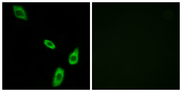 Immunofluorescence analysis of LOVO cells, using ADRA1B Antibody. The picture on the right is blocked with the synthesized peptide.
