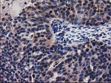 Immunohistochemical staining of paraffin-embedded Adenocarcinoma of Human ovary tissue using anti-ADSL mouse monoclonal antibody.