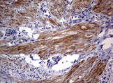 AFAP1 / AFAP Antibody - IHC of paraffin-embedded Human endometrium tissue using anti-AFAP1 mouse monoclonal antibody. (Heat-induced epitope retrieval by 10mM citric buffer, pH6.0, 120°C for 3min).