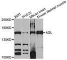 AGL Antibody - Western blot analysis of extracts of various cell lines, using AGL antibody at 1:1000 dilution. The secondary antibody used was an HRP Goat Anti-Rabbit IgG (H+L) at 1:10000 dilution. Lysates were loaded 25ug per lane and 3% nonfat dry milk in TBST was used for blocking. An ECL Kit was used for detection and the exposure time was 90s.