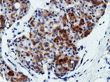 IHC of paraffin-embedded Adenocarcinoma of Human breast tissue using anti-AK5 mouse monoclonal antibody.