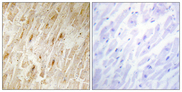 Immunohistochemistry analysis of paraffin-embedded human heart tissue, using BCA3 Antibody. The picture on the right is blocked with the synthesized peptide.