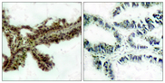 Immunohistochemistry analysis of paraffin-embedded human lung carcinoma, using Akt (Phospho-Thr308) Antibody. The picture on the right is blocked with the phospho peptide.