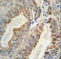AKT2 Monoclonal Antibody immunohistochemistry of formalin-fixed and paraffin-embedded human prostate carcinoma followed by peroxidase-conjugated secondary antibody and DAB staining.