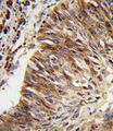 ALDH3B1 Antibody - Formalin-fixed and paraffin-embedded human lung carcinoma reacted with ALDH3B1 Antibody , which was peroxidase-conjugated to the secondary antibody, followed by DAB staining. This data demonstrates the use of this antibody for immunohistochemistry; clinical relevance has not been evaluated.