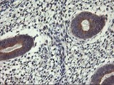 IHC of paraffin-embedded Human endometrium tissue using anti-ALG2 mouse monoclonal antibody.