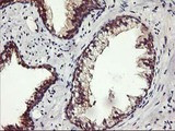 IHC of paraffin-embedded Human prostate tissue using anti-ALG2 mouse monoclonal antibody.