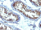 Alkaline Phosphatase Antibody - IHC testing of FFPE human testicular carcinoma with Alkaline Phosphatase antibody (ALPL/597). Required HIER: boil tissue sections in 10mM Tris with 1mM EDTA, pH 9, for 10-20 min followed by cooling at RT for 20 min.
