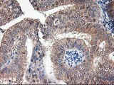 ALS2CR1 / NIF3L1 Antibody - IHC of paraffin-embedded Adenocarcinoma of Human endometrium tissue using anti-NIF3L1 mouse monoclonal antibody. (Heat-induced epitope retrieval by 10mM citric buffer, pH6.0, 100C for 10min).