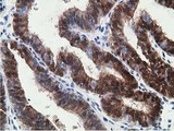 IHC of paraffin-embedded Adenocarcinoma of Human endometrium tissue using anti-HPGD mouse monoclonal antibody.