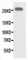 WB of ABCA4 antibody. All lanes: Anti-ABCA4 at 0.5ug/ml. WB: SHG Whole Cell Lysate at 40ug. Predicted bind size: 256KD. Observed bind size: 256KD.