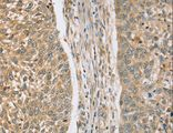 Immunohistochemistry of Human lung cancer using RASSF4 Polyclonal Antibody at dilution of 1:25.