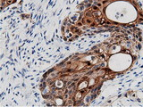 Immunohistochemical staining of paraffin-embedded Carcinoma of Human pancreas tissue using anti-AK5 mouse monoclonal antibody.