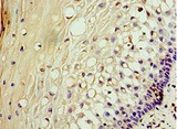 Immunohistochemistry of paraffin-embedded human cervical cancer using antibody at 1:100 dilution.