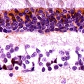 Immunohistochemical analysis of Cone Arrestin staining in human retina formalin fixed paraffin embedded tissue section. The section was pre-treated using heat mediated antigen retrieval with sodium citrate buffer (pH 6.0). The section was then incubated with the antibody at room temperature and detected with HRP and DAB as chromogen. The section was then counterstained with hematoxylin and mounted with DPX.