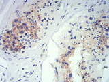Immunohistochemical analysis of paraffin-embedded testis tissues using ATG14L mouse mAb with DAB staining.