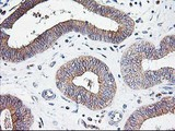 IHC of paraffin-embedded Adenocarcinoma of Human endometrium tissue using anti-ATG3 mouse monoclonal antibody.