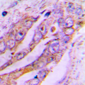 Immunohistochemical analysis of ATP5JL staining in human lung cancer formalin fixed paraffin embedded tissue section. The section was pre-treated using heat mediated antigen retrieval with sodium citrate buffer (pH 6.0). The section was then incubated with the antibody at room temperature and detected using an HRP conjugated compact polymer system. DAB was used as the chromogen. The section was then counterstained with hematoxylin and mounted with DPX. w