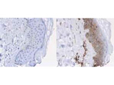 Immunohistochemistry of Rabbit anti-Beta-2-Microglobulin Antibody. Tissue: normal human skin. Fixation: formalin fixed paraffin embedded. Antigen retrieval: not required. Primary antibody: Left panel: isotype control, Right panel: 2 microglobulin antibody at 1 ug/ml for 20 min at RT. Secondary antibody: Peroxidase rabbit secondary antibody at 1:10000 for 45 min at RT. Localization: 2 microglobulin is cell membrane (and to lesser amount cytoplasmic compartment). Staining: Beta-2-Microglobulin as brown with diaminobenzidine and with a hematoxylin purple counterstain.