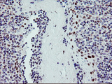 IHC of paraffin-embedded Human tonsil using anti-BACH1 mouse monoclonal antibody.