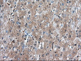 Immunohistochemical staining of paraffin-embedded Human liver tissue using anti-BDH2 mouse monoclonal antibody. (Dilution 1:50).