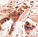 Formalin-fixed and paraffin-embedded human cancer tissue reacted with the primary antibody, which was peroxidase-conjugated to the secondary antibody, followed by AEC staining. This data demonstrates the use of this antibody for immunohistochemistry; clinical relevance has not been evaluated. BC = breast carcinoma; HC = hepatocarcinoma.