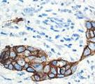 IHC of CA15-3 on FFPE Breast tissue.