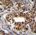 CAD Antibody immunohistochemistry of formalin-fixed and paraffin-embedded human breast carcinoma followed by peroxidase-conjugated secondary antibody and DAB staining.