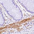 Immunohistochemistry of Human colon stained with anti-caldesmon-pan antibody
