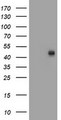 HEK293T cells were transfected with the pCMV6-ENTRY control (Left lane) or pCMV6-ENTRY CPO (Right lane) cDNA for 48 hrs and lysed. Equivalent amounts of cell lysates (5 ug per lane) were separated by SDS-PAGE and immunoblotted with anti-CPO.