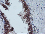 IHC of paraffin-embedded Human prostate tissue using anti-CAST mouse monoclonal antibody. (Heat-induced epitope retrieval by 10mM citric buffer, pH6.0, 100C for 10min).